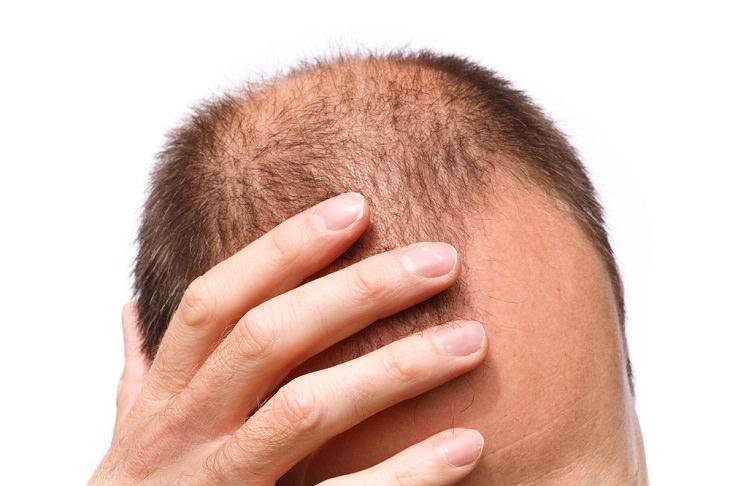 nuevo tratamiento perdida de cabello