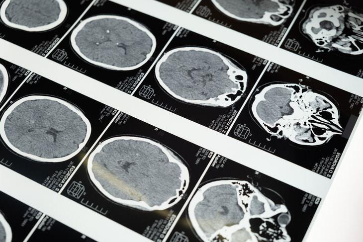 Fármaco Contra La Diarrea Mata Las Células Cancerosas Del Cerebro