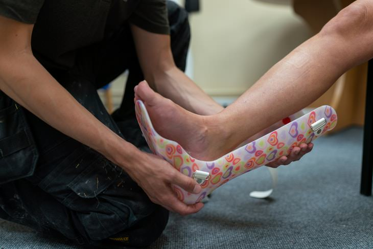 Muscle Atrophy leg in cast