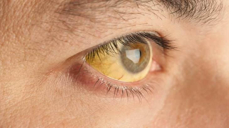 Fantástica Aplicación Puede Detectar El Cáncer De Páncreas