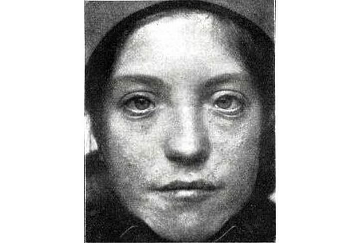 Paciente con síndrome de Waardenburg, que muestra un puente nasal ancho y ojos muy abiertos