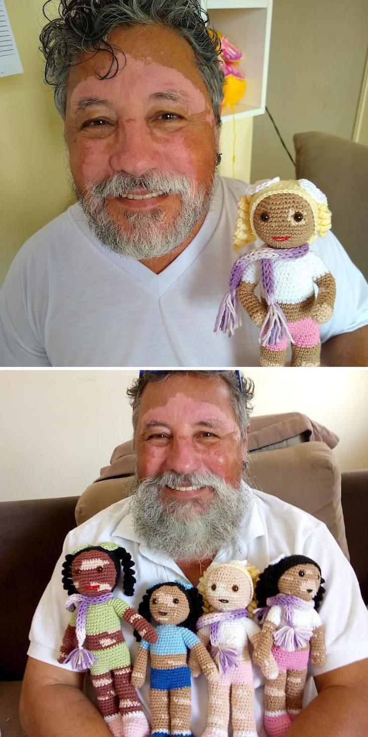 Fotos Que Nos Demuestran Por Qué Los Abuelos Son Fantásticos Un abuelo con vitiligo hace muñecos de ganchillo para que los niños con esta afección se sientan mejor.