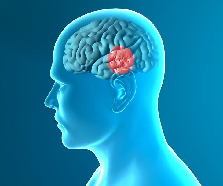 ¿Una nueva esperanza para las personas que luchan con enfermedades neurológicas?