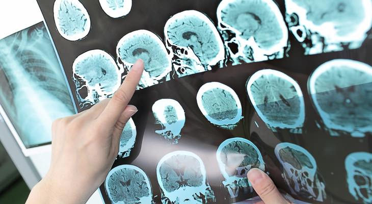 Los Antiácidos Aumentarían El Riesgo De Ataque Cerebral Radiografía del cerebro