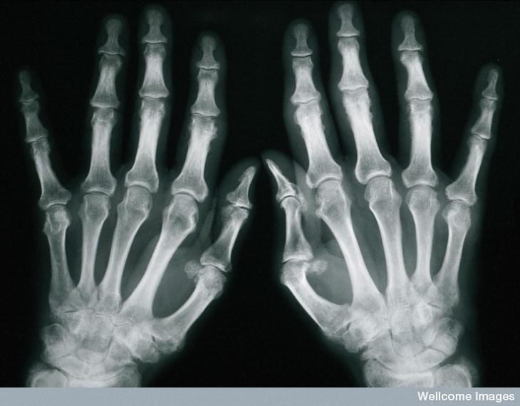 5. Artritis psoriásica