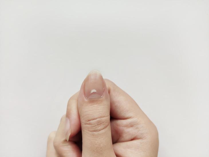 Causas De Las Manchas En Las Uñas Traumatismo en la uña