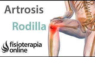 ¿Qué Es La Artrosis De Rodilla?
