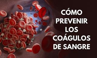9 Ajustes a Tu Estilo De Vida Para Prevenir Los Cóagulos De Sangre