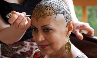Coronas De Henna Para Pacientes Con Cáncer