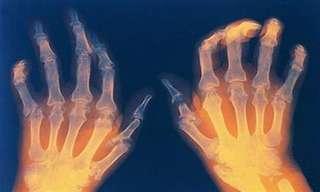 Importante: ¿Qué Tipo De artritis Padeces?