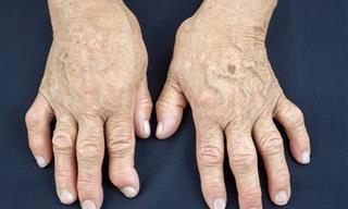 Calma La Artritis Reumatoide Con Estos 7 Remedios Naturales
