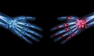 Remedios Naturales Para Aliviar Las Molestias De La Artritis