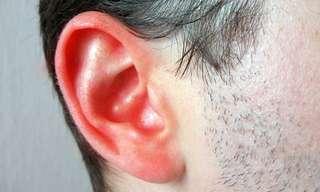 Los 7 Remedios Naturales Para El Oído