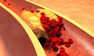 Descubre Si Tienes Riesgo De Sufrir Un Coágulo De Sangre