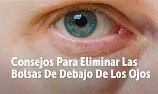 Elimina Las Bolsas De Los Ojos Con Estos Consejos