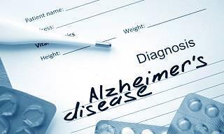 ¡Un Importantísimo Avance En El Tratamiento Del Alzheimer!