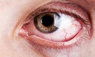 Guía y Remedios Naturales Para Aliviar La Sequedad Ocular