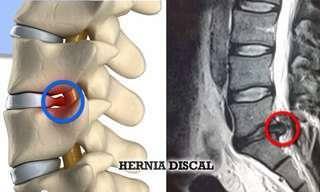 Aprende a Fortalecer Tu Cuerpo y Mejorar La Hernia De Disco