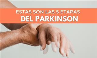 El Parkinson: Las 5 Etapas De La Enfermedad