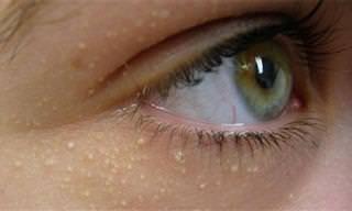 ¿Cómo Eliminar Las Bolitas Alrededor De Los Ojos?