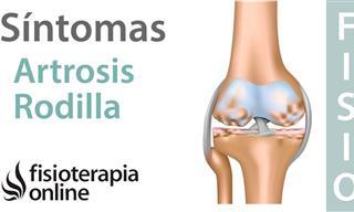 Te Mostramos Cómo Minimizar Los Síntomas De La Artrosis De Rodilla