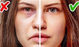 11 Señales De Problemas De Salud Reflejados En Tu Cara
