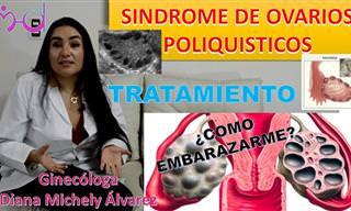 Síntomas y Tratamiento De Los Ovarios Poliquísticos