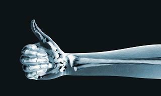 Estos 10 Consejos Mantendrán Tus Huesos Fuertes Por Más Tiempo