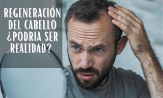 Estudio Revela Un Nuevo Alentador Tratamiento Para La Pérdida Del Cabello