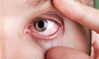 8 Causas Comunes De Las Contracciones Oculares