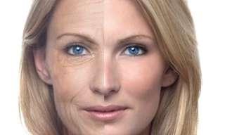 5 Cosas Que Las Arrugas Dicen Sobre Tu Salud