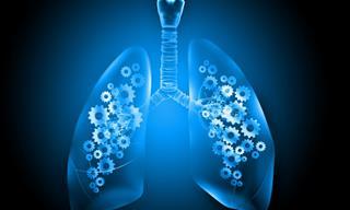 Hallazgos Sobre Nuevo Tratamiento Para El Cáncer De Pulmón