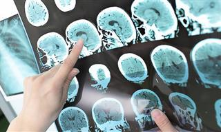 Los Antiácidos Podrían Incrementar El Riesgo De Accidente Cerebrovascular