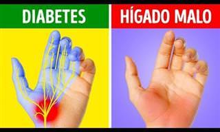 ¿Sabías Que Las Manos Pueden Advertirnos Sobre Problemas De Salud?