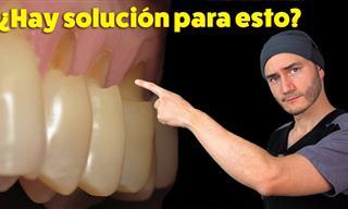 Dentista Te Explica El Desgaste En El Cuello De Los Dientes