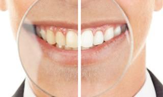 Hábitos Cotidianos Que Promueven Las Caries Dentales
