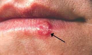 Remedios Caseros Para Las Infecciones Labiales