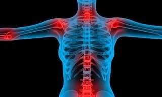 Tips Para Pacientes Con Problemas De Articulaciones