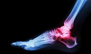 ¿Sufres de gota? Remedios naturales para combatir el dolor