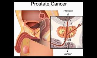 Excelentes Remedios Naturales Para Desinflamar La Próstata