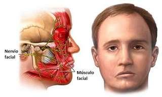 Todo Sobre La Parálisis Facial Periférica