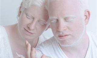 20 Maravillosas Fotos Sobre Bellezas Albinas