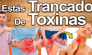 Estos Síntomas Son Indicios De Que Tu Cuerpo Tiene Toxinas