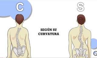 Ejercicios Para Mejorar La Escoliosis Vertebral