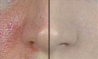 Una Guía Para Minimizar Los Poros Faciales Grandes