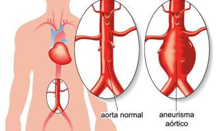 Aneurisma Aórtico: ¿Cuáles Son Los Síntomas y Los Tratamientos?
