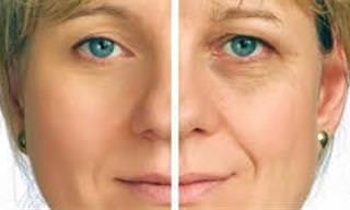 10 Remedios Para Deshacerte De Las Ojeras