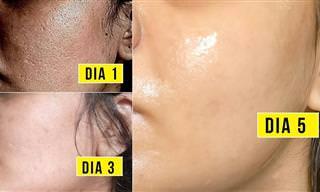 Rutina Para Limpiar Poros, Espinillas y Reducir Arrugas