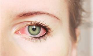 8 Señales De Los Ojos Que Pueden Indicar Problemas De Salud