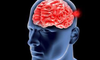 Sobre El Aneurisma Cerebral; Ese Asesino Silencioso
